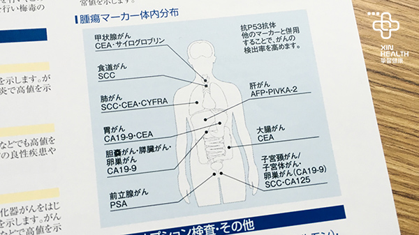 人体肿瘤部位