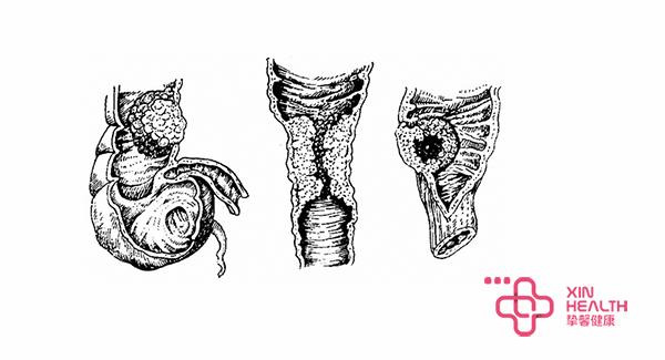 结肠直肠癌病理图