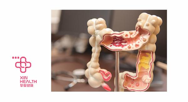 结肠直肠癌早期