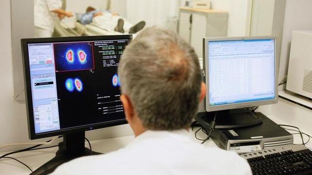 医生正在查看患者 PET-CT 检查影像资料