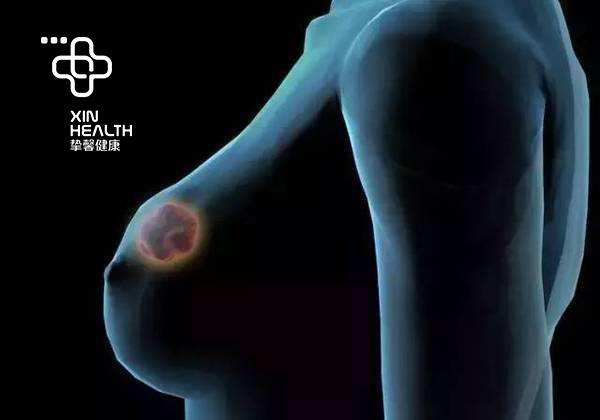 在日本体检乳房