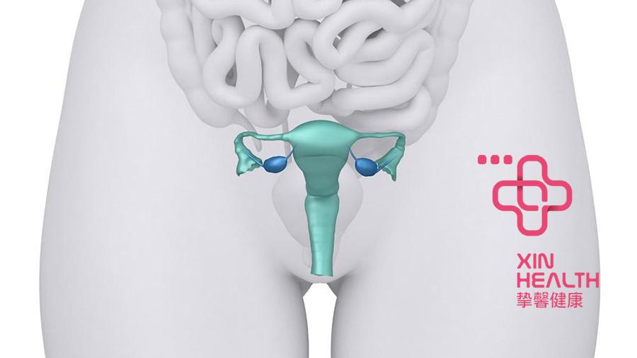 去日本体检卵巢