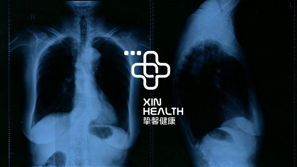 在日本体检X光