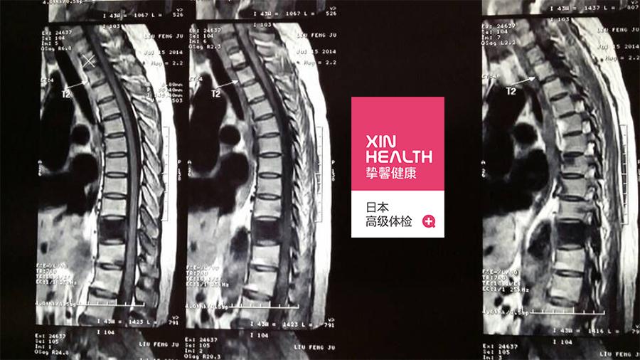 去日本体检腰椎