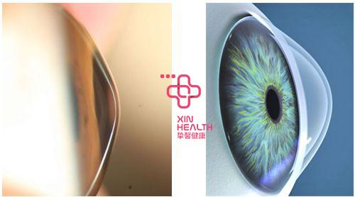 眼睛疾病检查