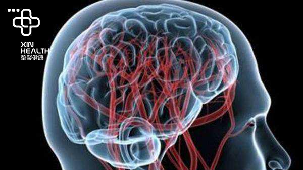 脑血管疾病