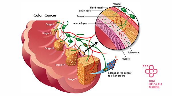 大肠癌细胞演示