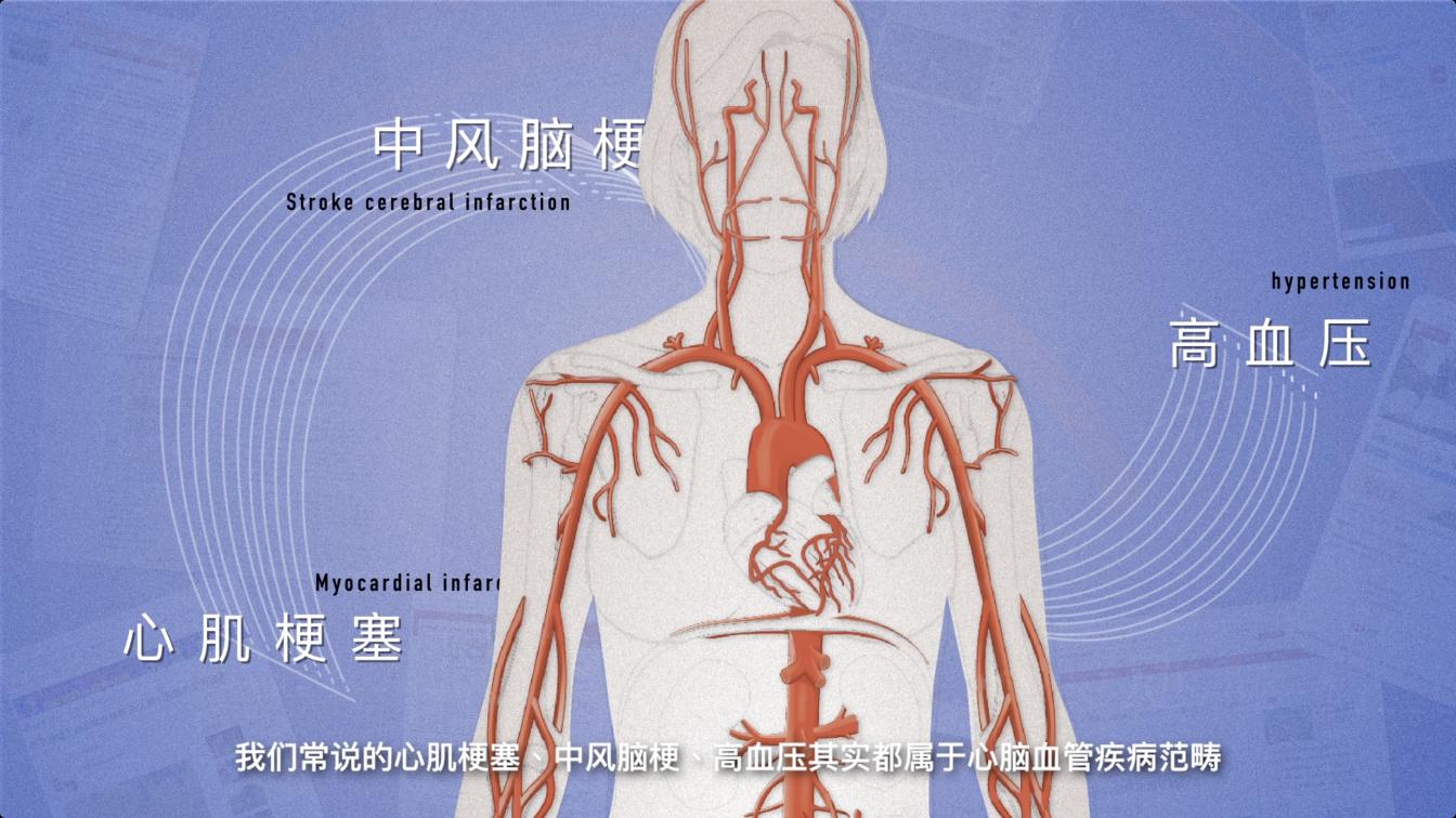 心肌梗塞、中风脑梗、高血压其实都属于心脑血管疾病范畴