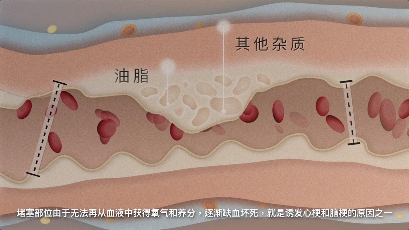 原本通畅的动脉血管变窄,甚至完全堵塞