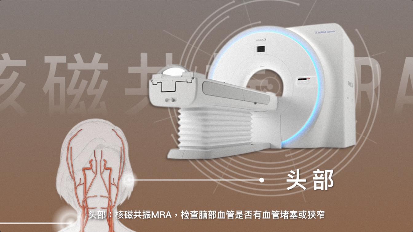 头部血管核磁共振MRA