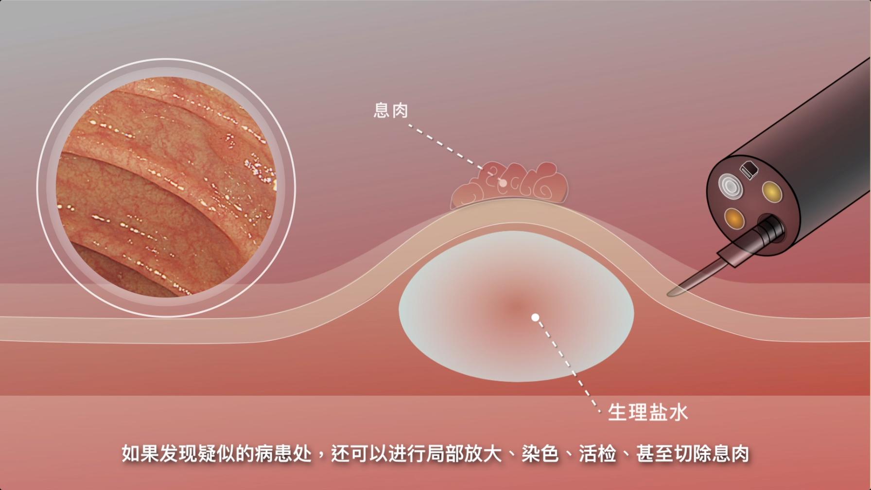 大肠CT和胶囊镜,无法替代肠镜检查