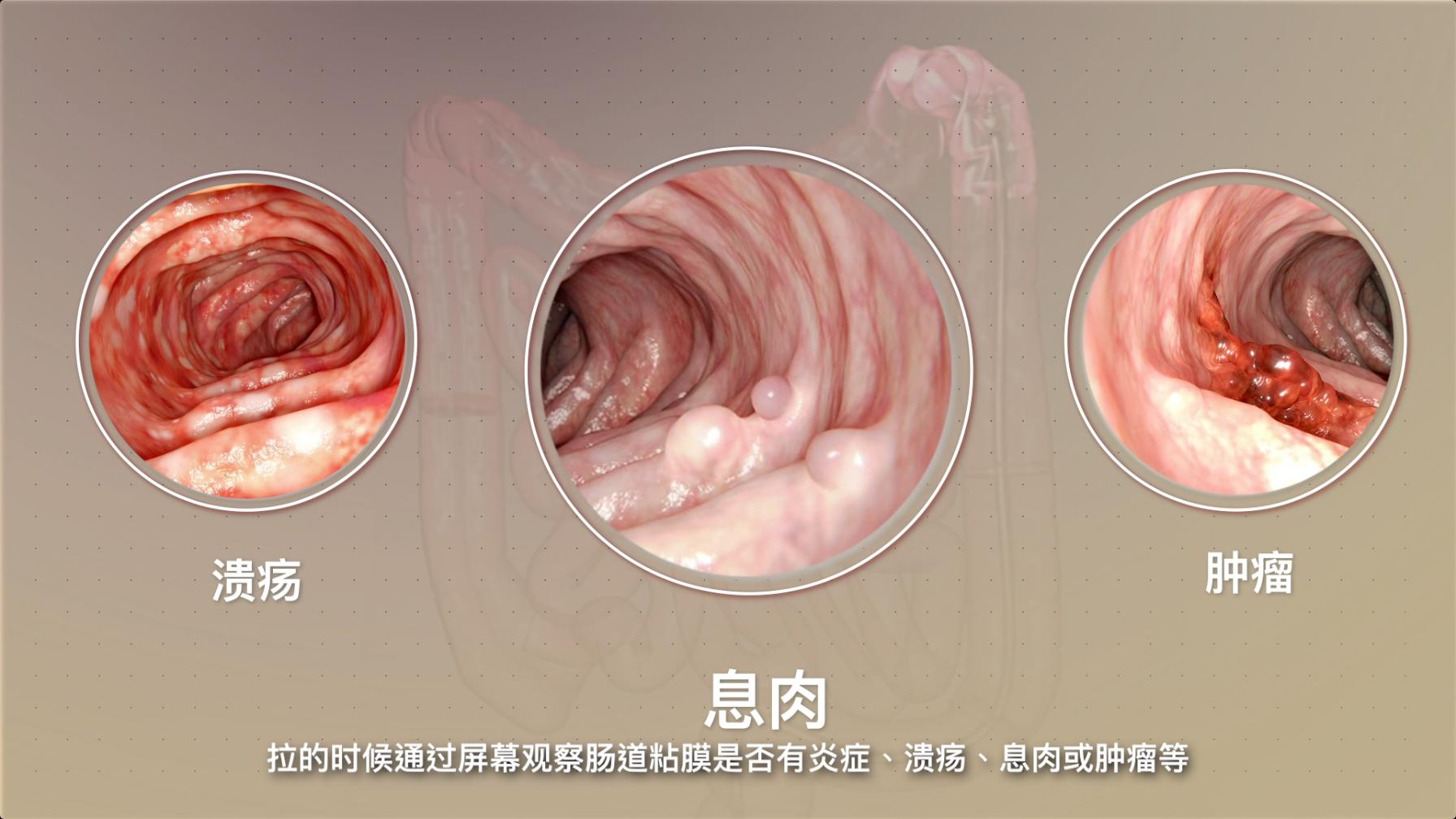 肠镜可以诊断肠道炎症、息肉、肿瘤等问题