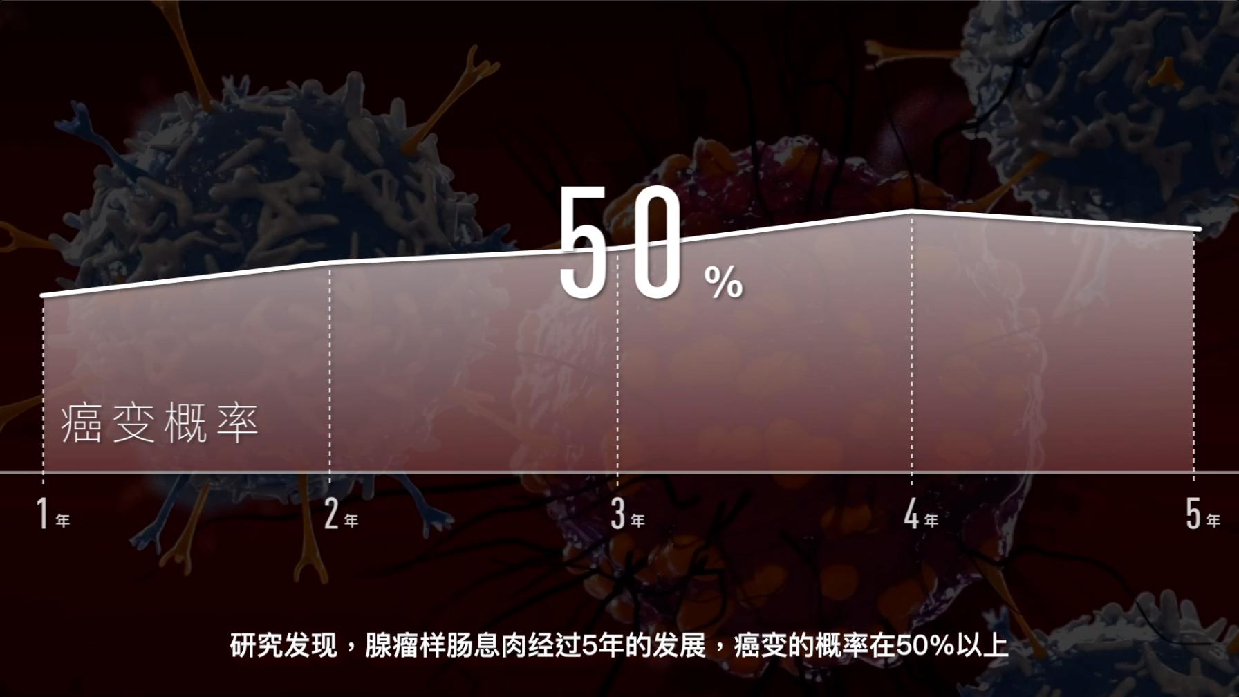 大肠腺瘤型息肉癌变概率