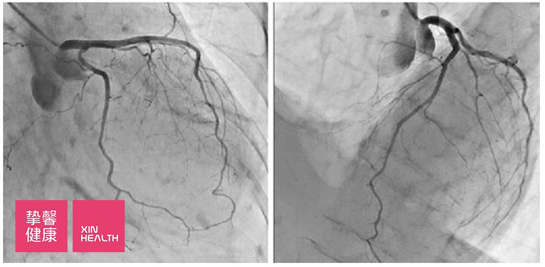 正常的冠状动脉造影 (左图 从右前斜位下方看左冠状动脉    右图 从左前斜上方看左冠状动脉)