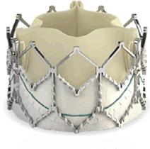 TAVI 使用的人工主动脉瓣打开后