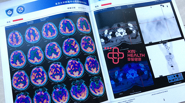 PET-CT 检验报告影像资料图