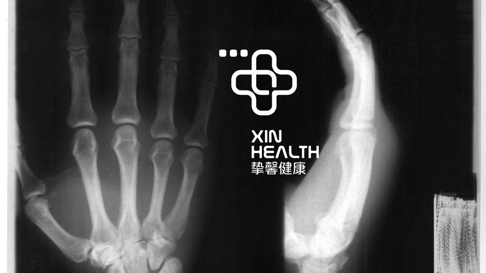 在日本体检骨骼