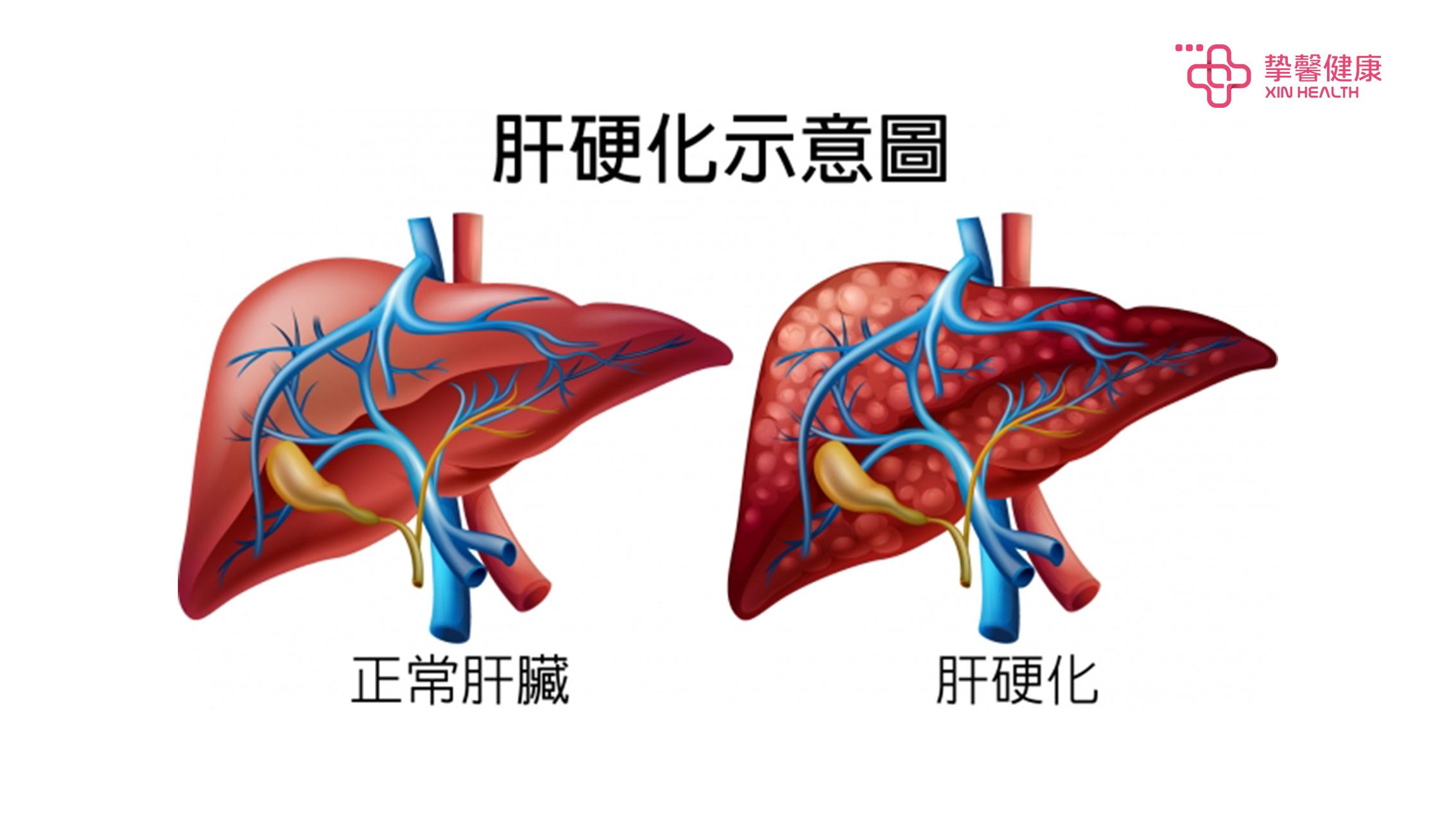 肝硬化病图