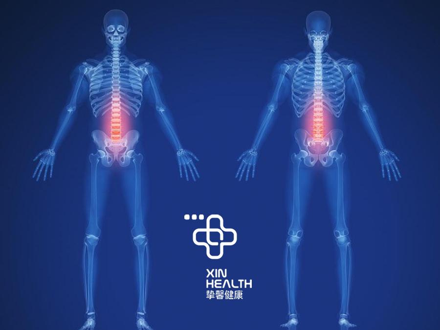 身体X光检查图