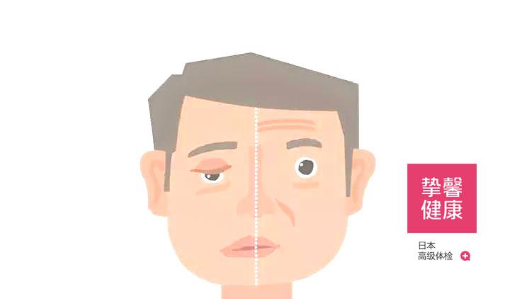 中风会导致患者鼻歪眼斜