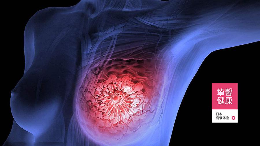 """""""枝繁叶茂""""的乳房内部结构"""