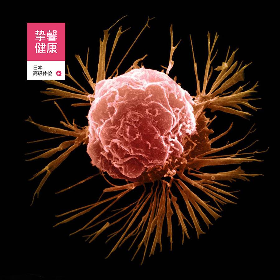 乳腺癌细胞