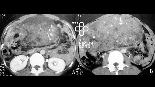 注射对比剂后增强扫描下的腹部CT