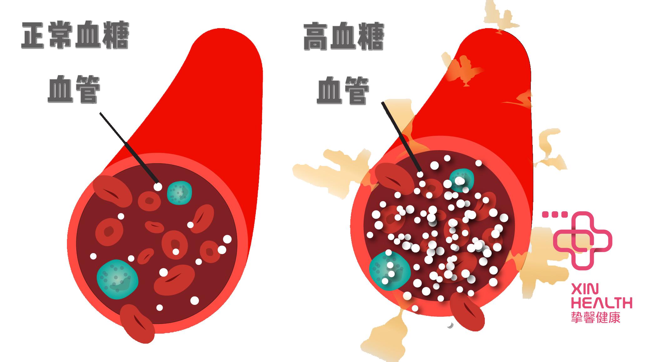 高血糖会损伤血管和器官,导致多种急、慢性并发症。