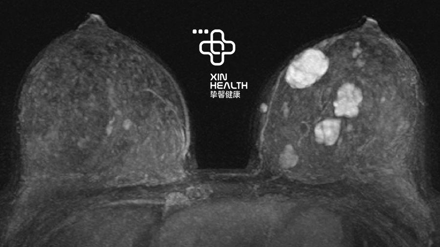 X光照下的乳房,白色部分为乳腺纤维瘤
