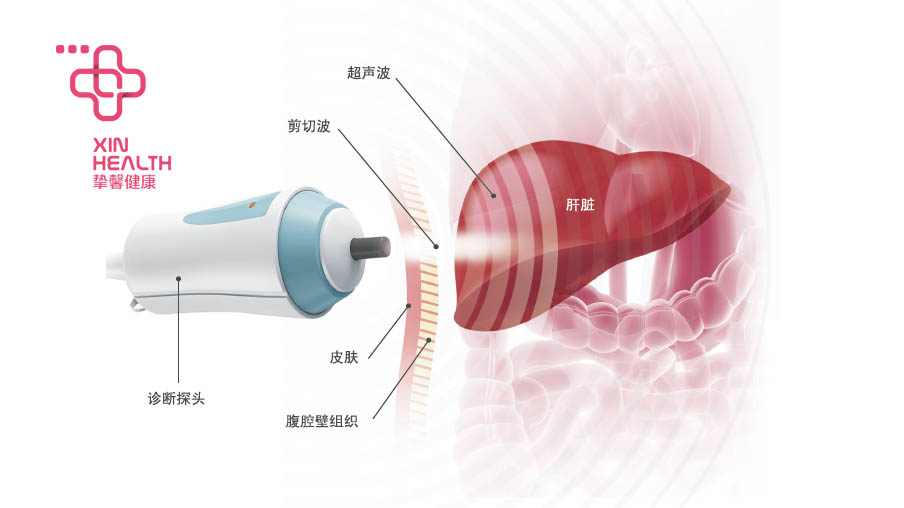 FibroScan检查仪器示意图