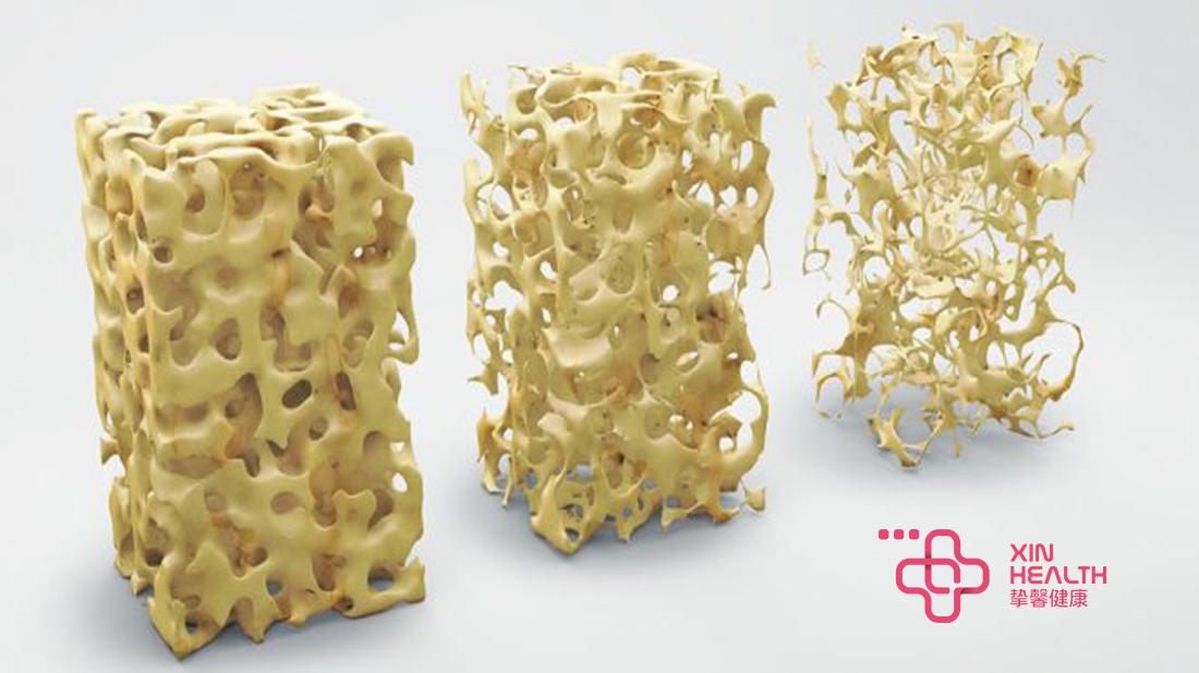 随着年龄的增长,人体的骨骼密度会越来越低