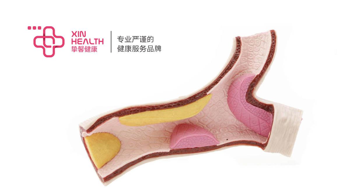 血管内沉积的黄色粥状物体