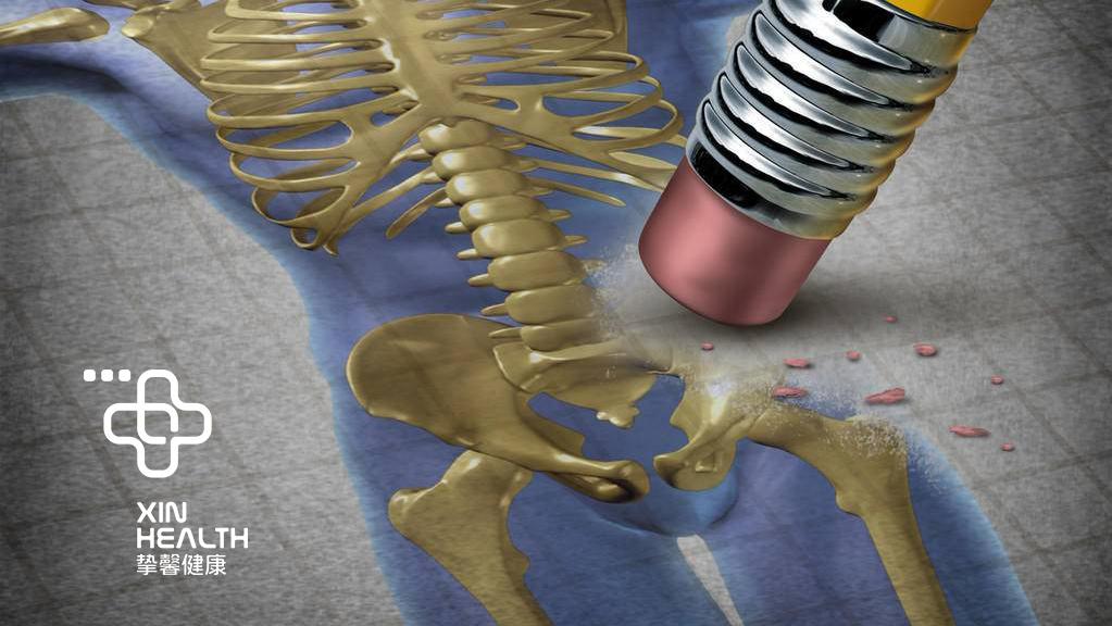 髋部发生骨质疏松后对于人体的危害极大
