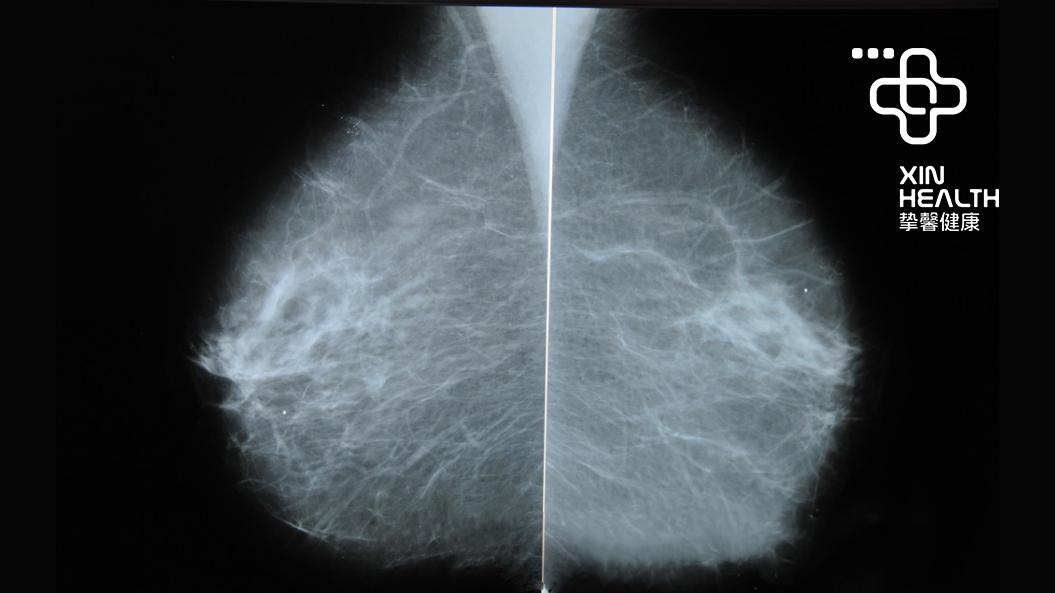 乳腺X光照射下的乳房结构