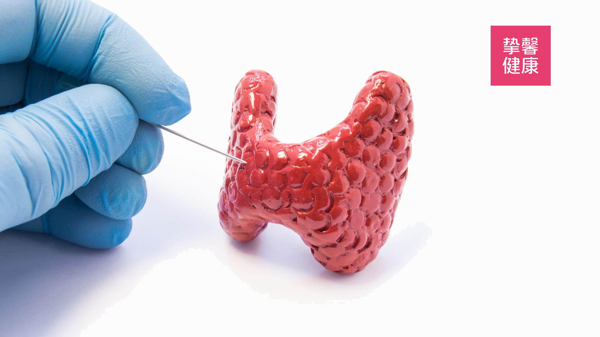 甲状腺疾病难以被发现和确诊