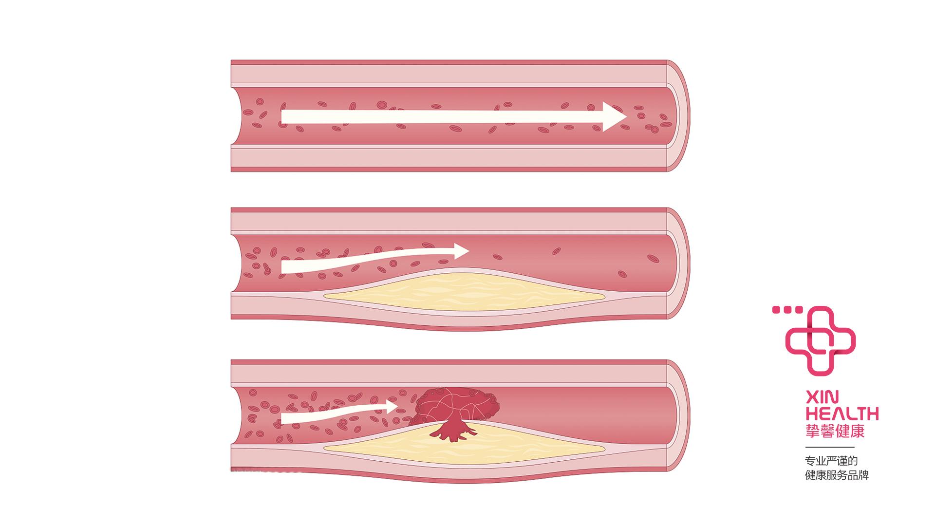 心肌梗塞的主要原因:冠状动脉遭到阻塞