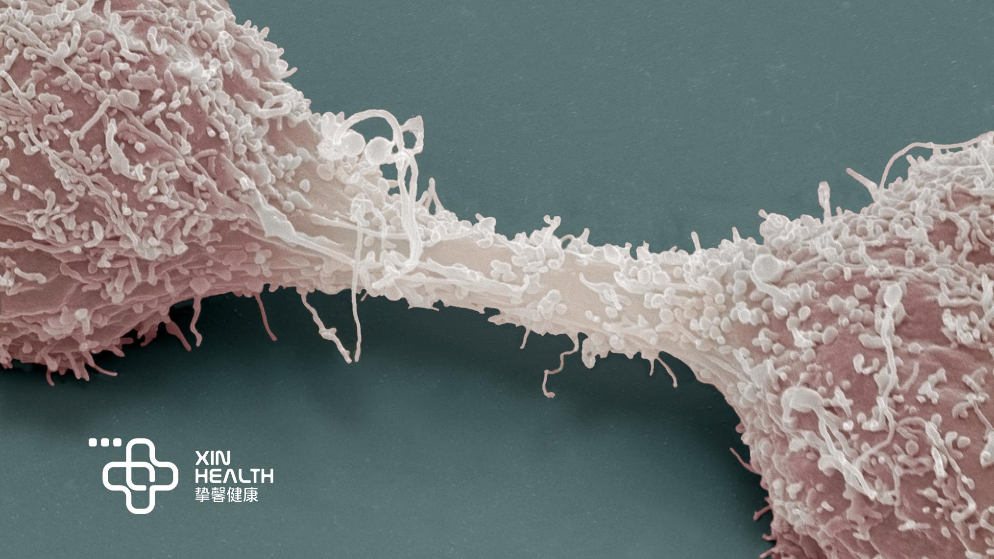 癌细胞正在生长分裂