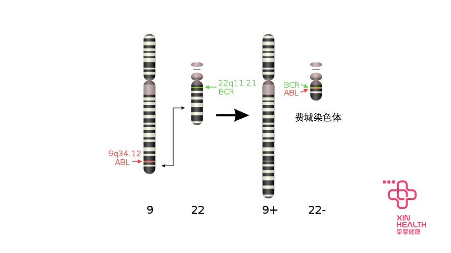 费城染色体示意图