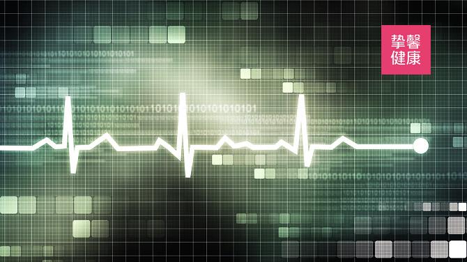 心电图是心脏往复活动的表现