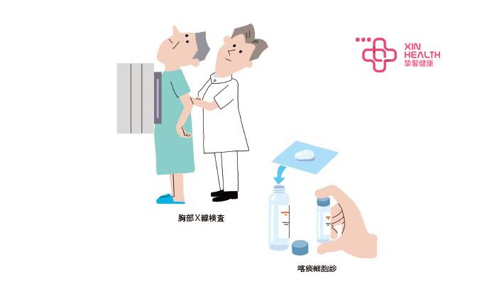 胸部CT、咳痰细胞诊断检查示意图