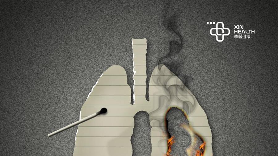 """肺癌是危害人类健康的""""头号杀手"""""""