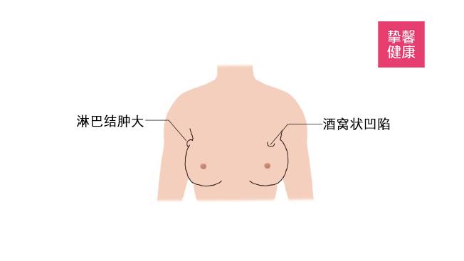 乳腺癌的两种症状表现