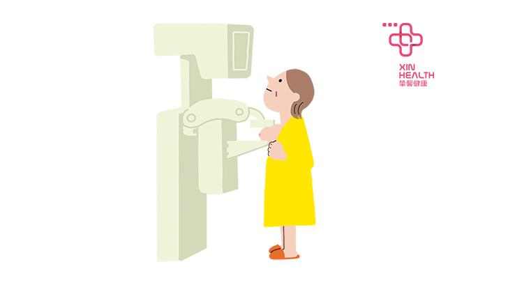 乳腺钼靶检查