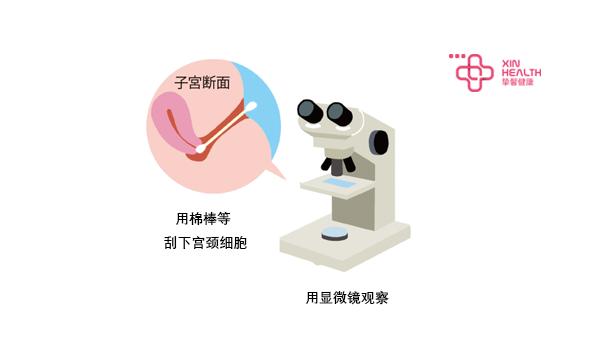 用棉棒等刮下的宫颈细胞 并在显微镜下观察