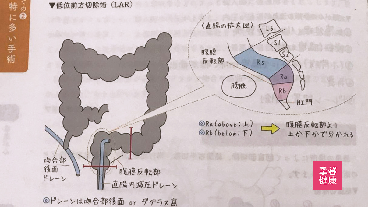 低位前切除术 Low Anterior Resection:LAR