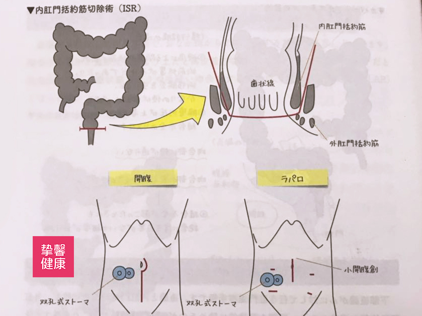 肛门内括约肌切除术 Intersphincteric Resection:ISR