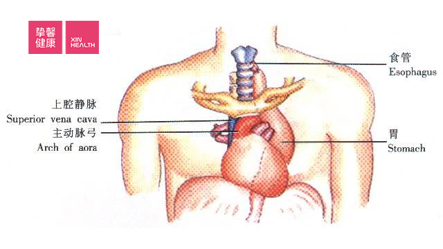 左侧开胸会影响到心脏、主动脉弓