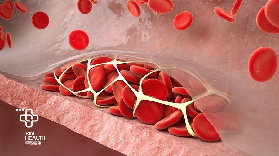 血小板数量过高,可能会引起血栓的形成