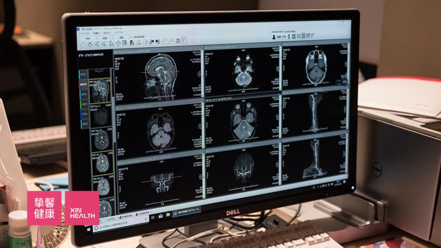 日本高级体检 用户核磁共振检查影像资料