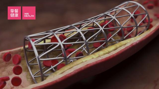 心脏支架在血管中有扩张血管的作用